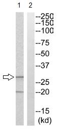 Western blot - LFA3 antibody (ab110379)