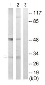 Western blot - Superoxide Dismutase 4 antibody (ab110388)