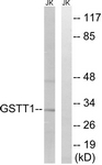 Western blot - Anti-Glutathione S Transferase theta 1 + Glutathione S Transferase theta 4  antibody (ab110390)