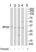 Western blot - RPS2 antibody (ab110394)