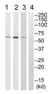 Western blot - RPC62 antibody (ab110401)