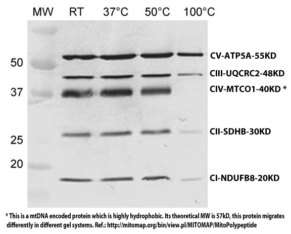 Western blot - MitoProfile® Total OXPHOS Rodent WB Antibody Cocktail (ab110413)
