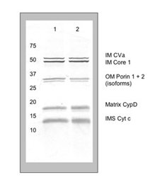 Western blot - MitoProfile® Membrane Integrity WB Antibody Cocktail (ab110414)