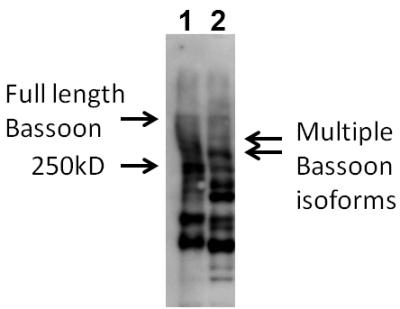 Western blot - Bassoon antibody (ab110426)