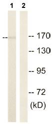 Western blot - ROCK2 antibody (ab110433)