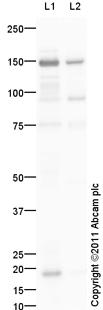 Western blot - Ceruloplasmin antibody (ab110449)