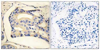 Immunohistochemistry (Formalin/PFA-fixed paraffin-embedded sections) - STK32C antibody (ab110453)