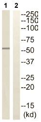 Western blot - STK32C antibody (ab110453)