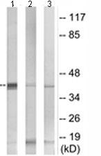 Western blot - SerpinB9 antibody (ab110455)