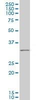 Western blot - IBRDC2 antibody [4F1] (ab110458)