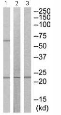 Western blot - HSPC150 antibody (ab110459)