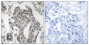 Immunohistochemistry (Formalin/PFA-fixed paraffin-embedded sections) - RAB3GAP2 antibody (ab110462)