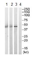 Western blot - Pyruvate Dehydrogenase E1-alpha subunit antibody (ab110474)