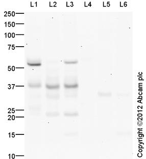 Western blot - Anti-Aquaporin 2 antibody (ab110496)