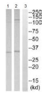 Western blot - SMUG1 antibody (ab110518)