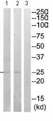 Western blot - RAB33A antibody (ab110526)