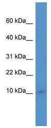 Western blot - IER3IP1 antibody (ab110542)