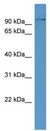 Western blot - DAG1  antibody (ab110543)