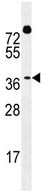 Western blot - Anti-Dux4 antibody (ab110555)