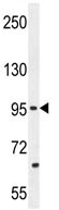 Western blot - PCDH20 antibody (ab110556)