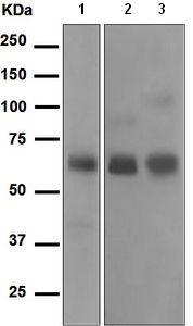 Western blot - Cortisol Binding Globulin antibody [EPR4615] (ab110648)