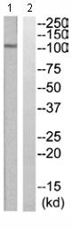 Western blot - Eph receptor A2 antibody (ab110690)
