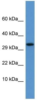Western blot - Apolipoprotein F antibody (ab110691)