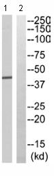 Western blot - VASH1 antibody (ab110695)