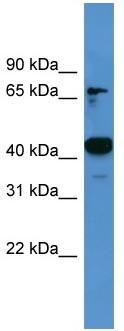 Western blot - ASCC1 antibody (ab110698)