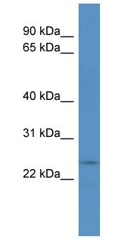 Western blot - CYHR1 antibody (ab110708)
