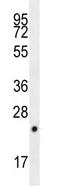 Western blot - CPSF4L antibody (ab110717)