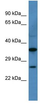 Western blot - CACNG1 antibody (ab110719)