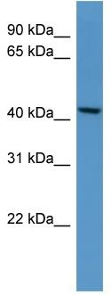 Western blot - B4GALT5 antibody (ab110720)