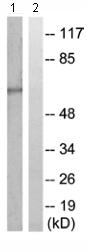 Western blot - Cytochrome P450 4A11/22 antibody (ab110746)