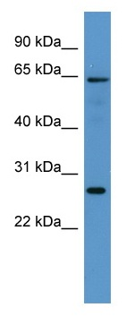 Western blot - Flavin containing monooxygenase 4 antibody (ab110751)