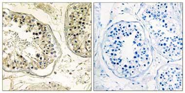 Immunohistochemistry (Formalin/PFA-fixed paraffin-embedded sections) - CHST13 antibody (ab110762)