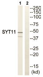 Western blot - SYT11 antibody (ab110766)