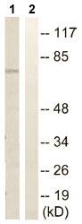 Western blot - SLC44A1 antibody (ab110767)