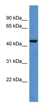 Western blot - DTX3 antibody (ab110773)
