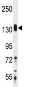 Western blot - SASH1 antibody (ab110776)