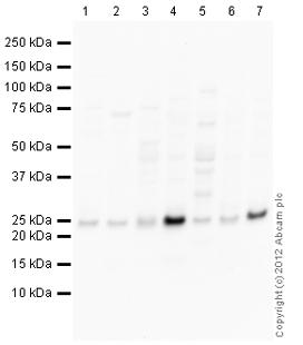 Western blot - Anti-MOBK1B antibody (ab110778)