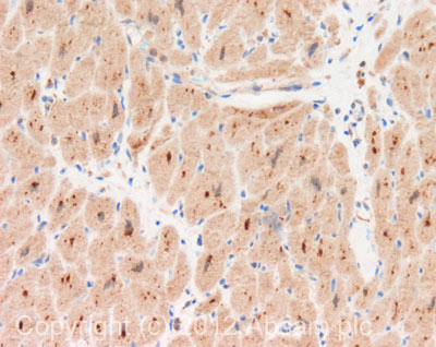 Immunohistochemistry (Formalin/PFA-fixed paraffin-embedded sections) - Anti-LATS2 antibody (ab110780)