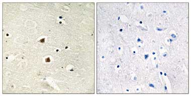 Immunohistochemistry (Formalin/PFA-fixed paraffin-embedded sections) - FOXJ3 antibody (ab110806)