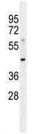 Western blot - MOGAT3 antibody (ab110808)