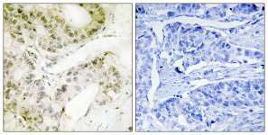 Immunohistochemistry (Formalin/PFA-fixed paraffin-embedded sections) - MED13 antibody (ab110811)