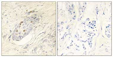 Immunohistochemistry (Formalin/PFA-fixed paraffin-embedded sections) - ZNF232  antibody (ab110814)