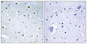 Immunohistochemistry (Formalin/PFA-fixed paraffin-embedded sections) - Gamma-tubulin complex component 3 antibody (ab110818)