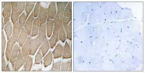 Immunohistochemistry (Formalin/PFA-fixed paraffin-embedded sections) - Rab34 antibody (ab110821)