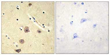 Immunohistochemistry (Formalin/PFA-fixed paraffin-embedded sections) - Adenylate kinase 5 antibody (ab110828)