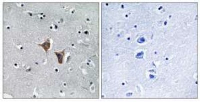 Immunohistochemistry (Formalin/PFA-fixed paraffin-embedded sections) - WASF4 antibody (ab110831)